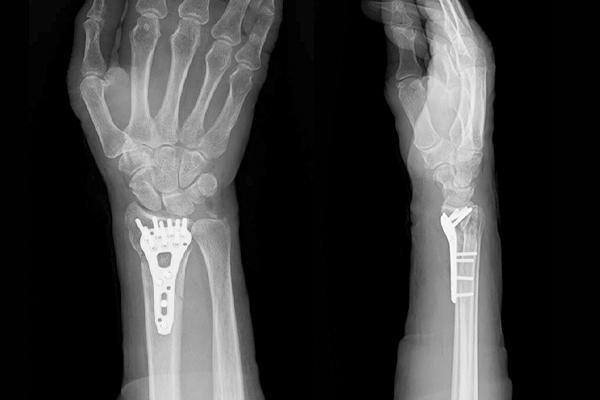 指 の 骨折 全治 何 ヶ月
