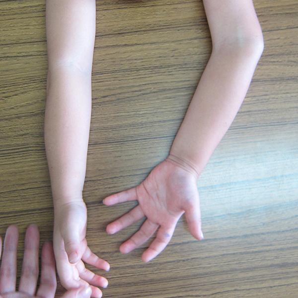 指 リウマチ ばね 初期 症状